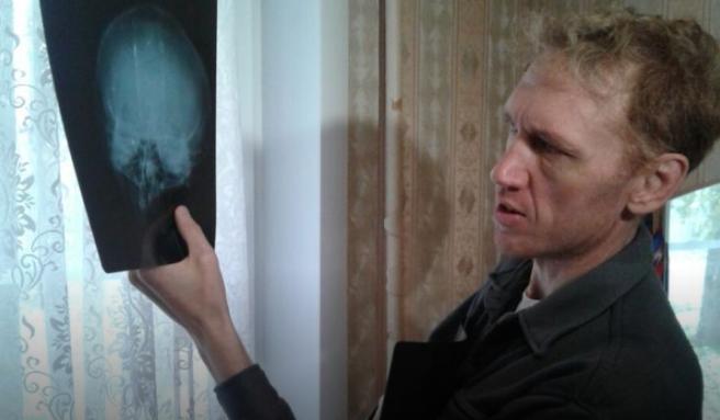 Иркутянину, защитившему детей от стрелявшего из пневматики хулигана, требуется операция