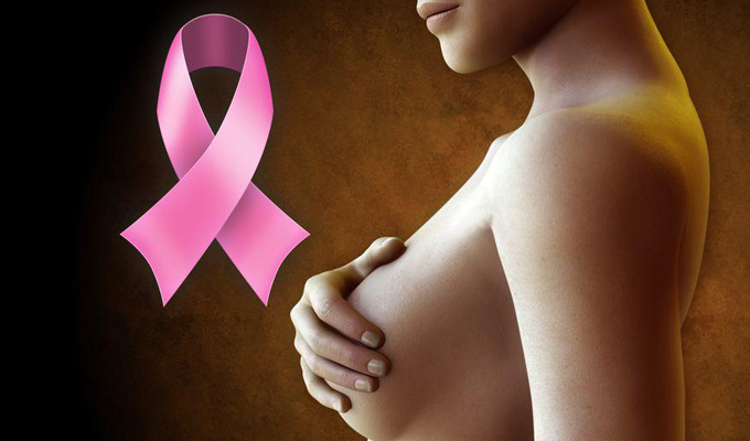 Разговор оважном: рак молочной железы