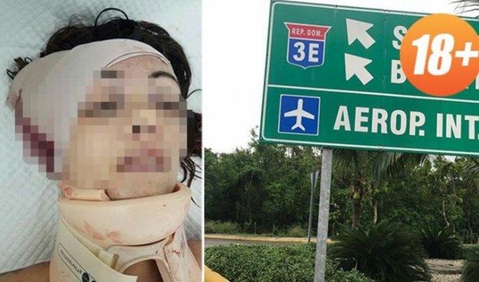 В Доминикане погибла россиянка, высунувшаяся топлес из окна авто