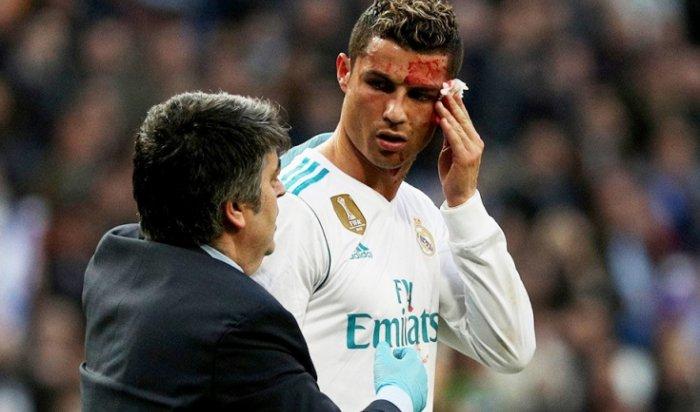 Криштиану Роналду разбили бутсой лицо вматче с«Депортиво»