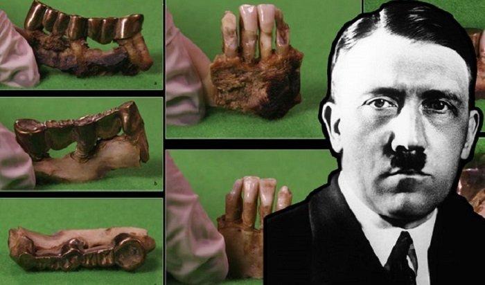 Зубы Адольфа Гитлера рассказали ученым опричине его смерти