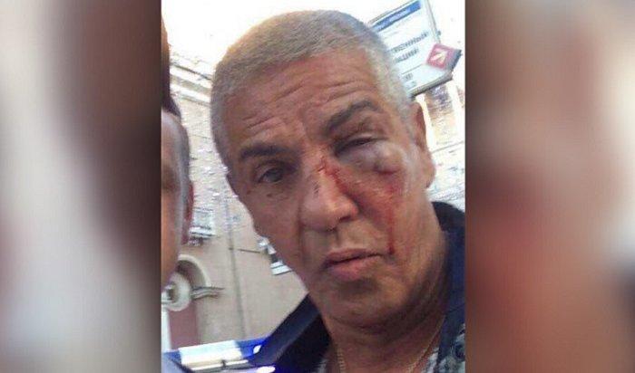Сами Насери, избитый белорусами, прооперирован винституте Гельмгольца (Видео)