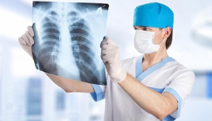 Больного туберкулезом иркутянина через суд отправили налечение
