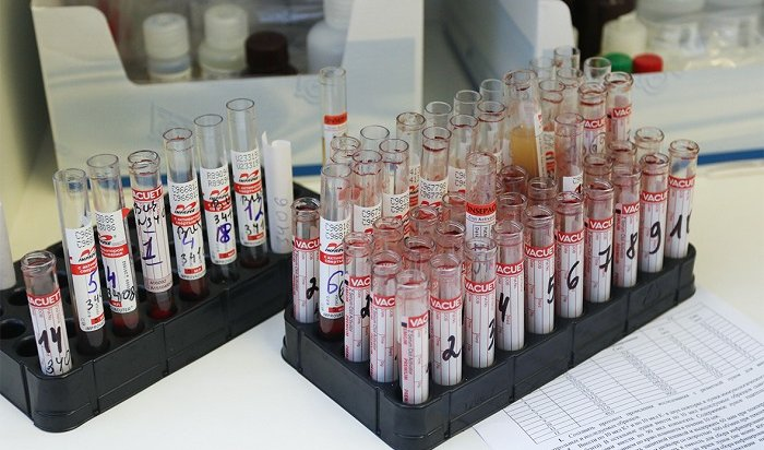 Иркутская область оказалась втопе посмертности отВИЧ