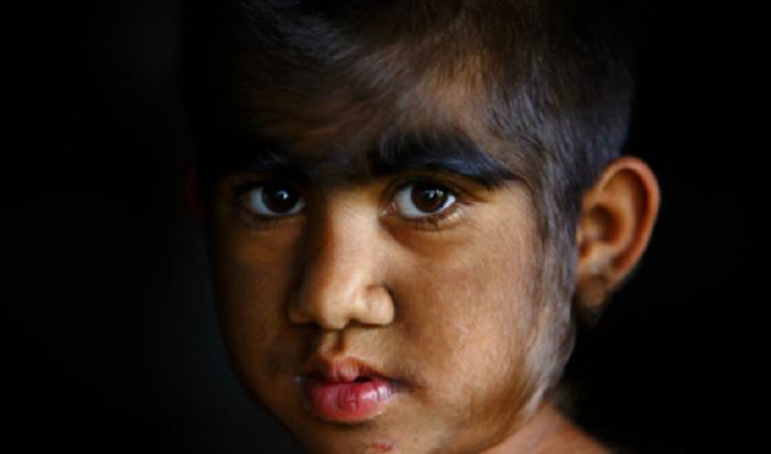 ВИспании 17детей заболели «синдромом оборотня»